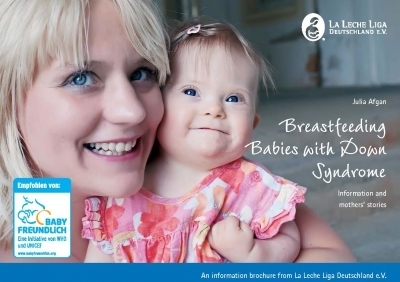 Breastfeeding Babies with Down Syndrome